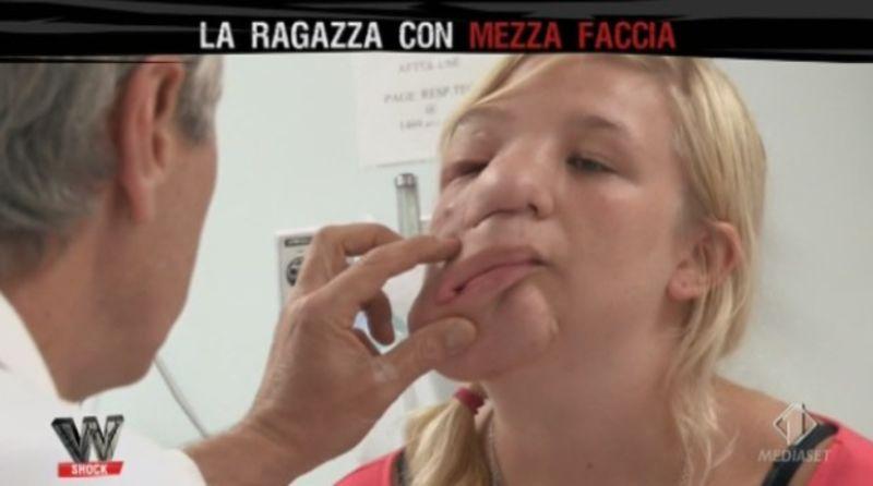 Apparizione di posti di pigmentary e il loro trattamento
