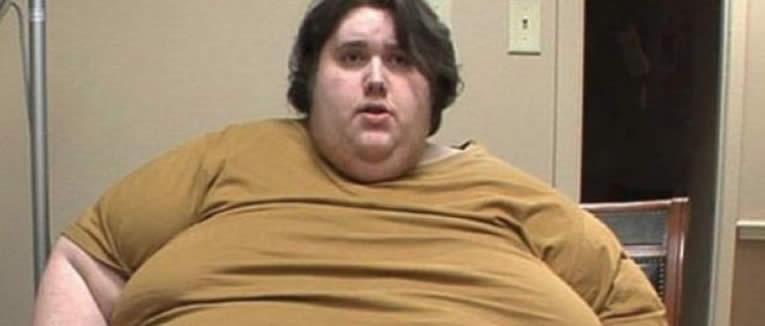 Il ragazzo di 380 chili oggi